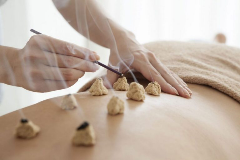 Moxibustion Therapy - Acupuncture Nepal